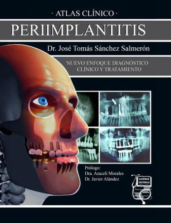 Atlas Clínico Periimplantitis
